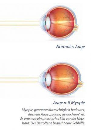 3-8 Auge bei Myopie