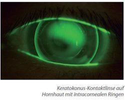 Keratoplastik - Kontaktlinse auf Hornhaut mit Ringen