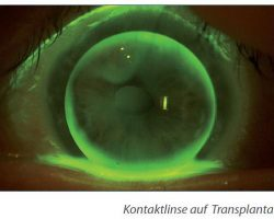 4-3 Keratokonus - Keratoplastik - Kontaktlinse auf Transplantat