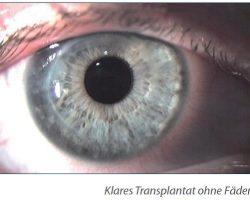 4-3 Keratokonus - Keratoplastik - Transplantat ohne Fäden