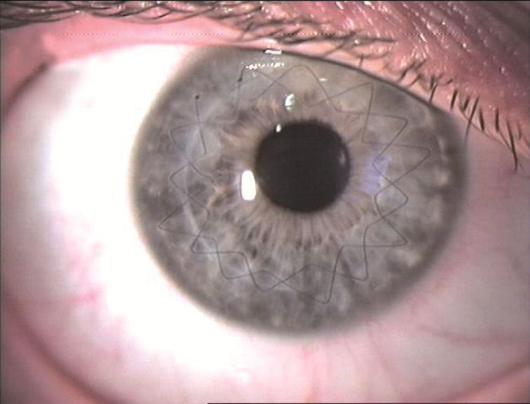 kontaktlinse-nach-hornhautchirurgie